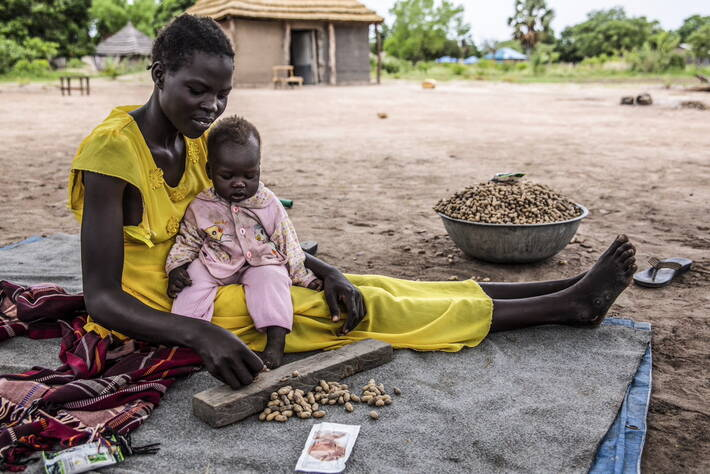 desnutrición Foto FAO