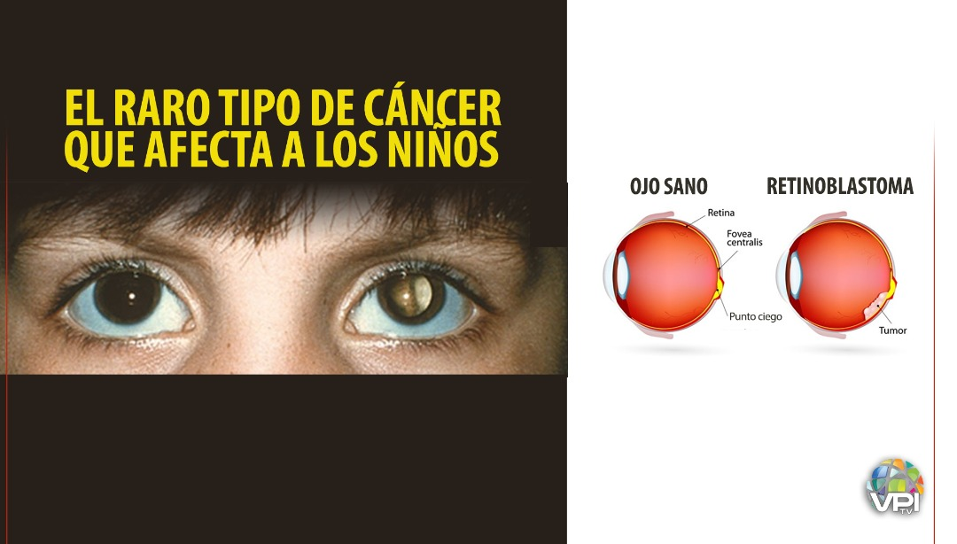 Retinoblastoma, un raro tipo de cáncer ocular que afecta a los niños