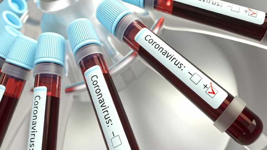 Costa Rica confirmó primer caso de coronavirus | Foto: Unión Radio