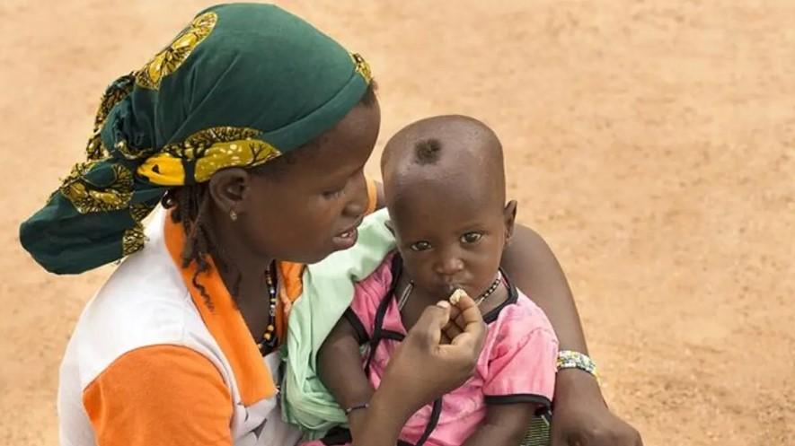 Datos de Unicef: 15,4 millones de niños en África con malnutrición a finales de 2020